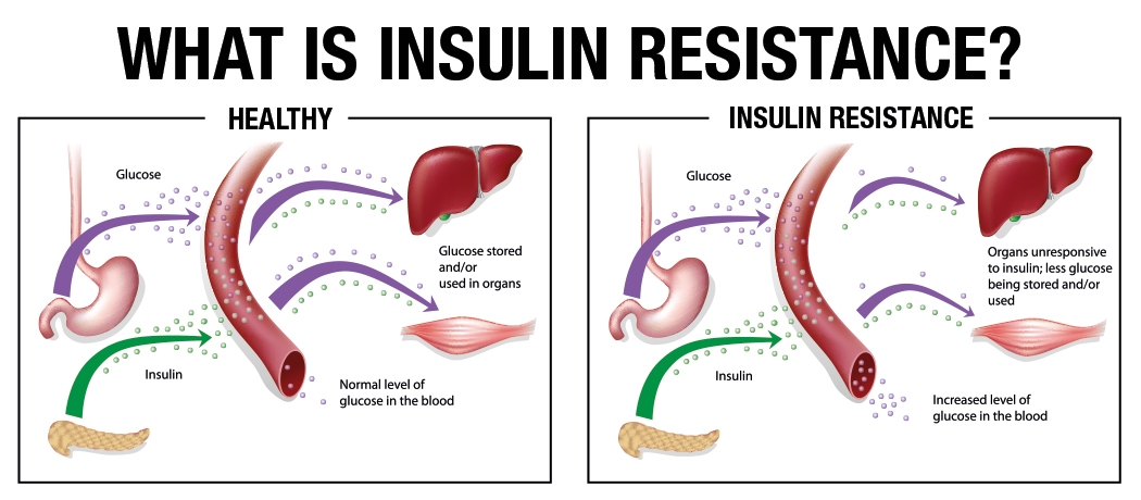 What Is Insulin Resistance